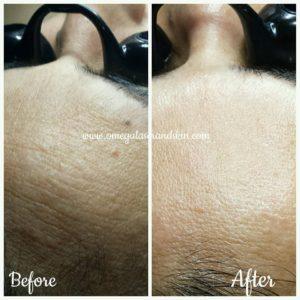 Custom facial treatment abbotsford, med spa abbotsford, skin care abbotsford