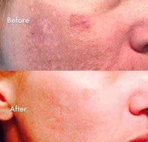 microneedling, rejuvapen, dermapen, cosmopen, cit pen, scar reduction, acne scar removal, acne scar